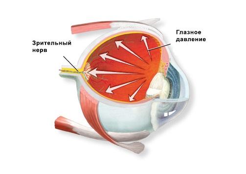 Лечение в домашних условиях глаукомы